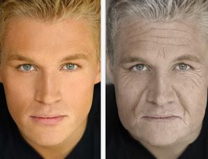 envelhecimento-antes-depois